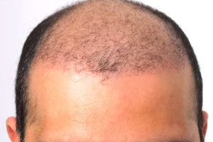 saç ekimi iyileşme süresi