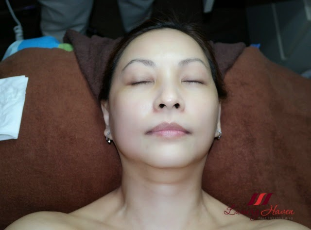rexults medspa age resist facial therapy blogger review