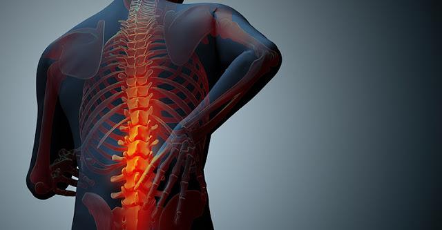Makanan Sebaiknya di Hindari untuk Mencegah Osteoporosis