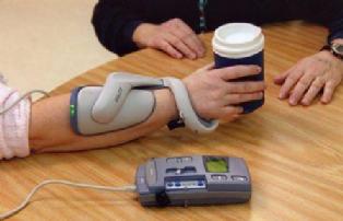 図:上肢の機能的電気刺激装置