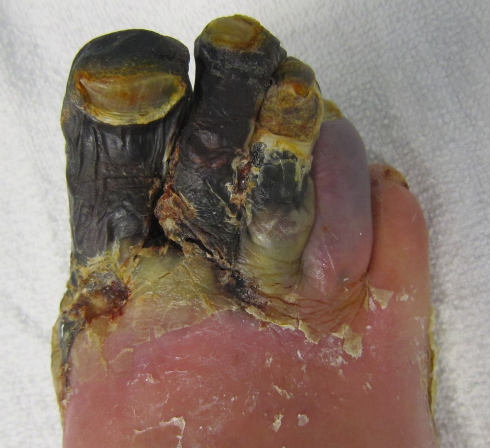 Trench Foot Gangrene Picture