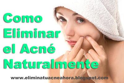 eliminar el acne naturalmente, eliminar el acne