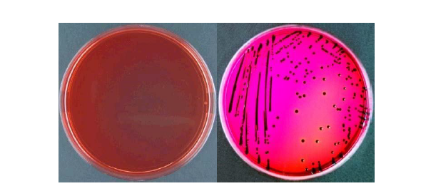 Media Xylose-Lysine-Desoxycholate Agar