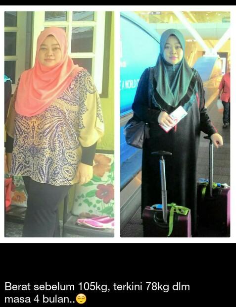 Testimoni Produk FKC turunkan obesitas sampai 23 kg