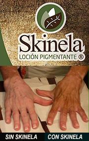 Skinela-Loción Pigmentante, Maquillaje Para Cubrir Manchas del Vitiligo