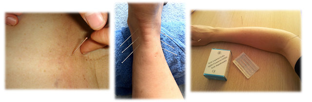 Dry Needling of Neck (Cervical Spine); Foot/Ankle; Wrist/Hand/Forearm/Elbow