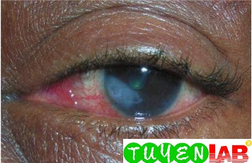 Herpetic keratitis in a woman staying in a shelter after Hurricane Katrina