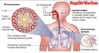 penyebab penyakit TB paru