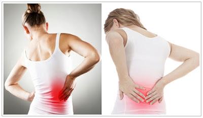 Cara Ampuh Mengobati Sakit Pinggang Kiri / Kanan Secara Alami