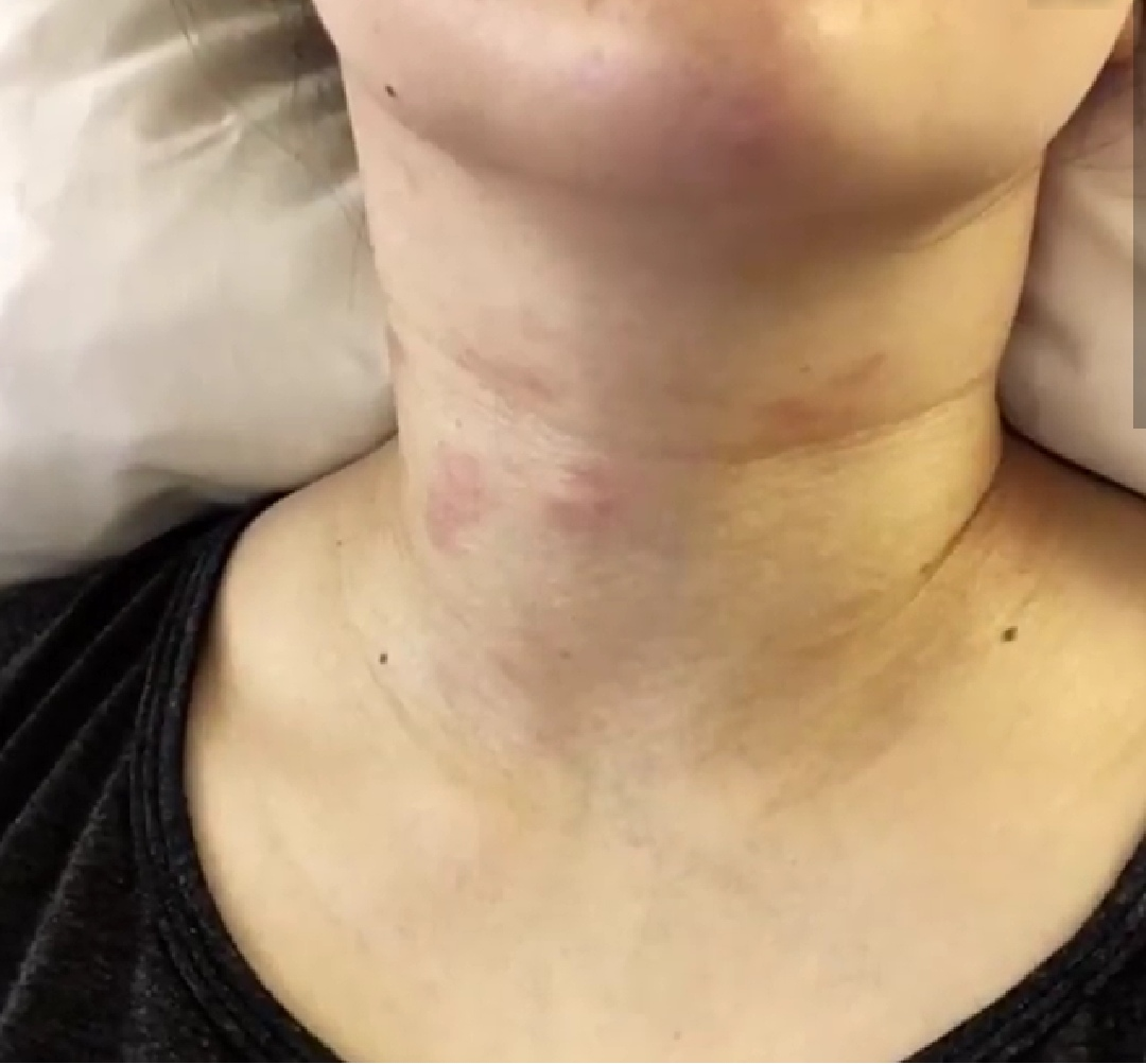 Kris Aquino suffers from Chronic Spontaneous Urticaria