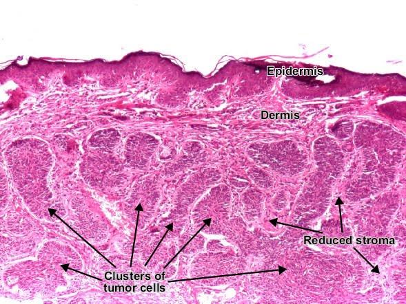 Normal Skin Histology | Bed Mattress Sale