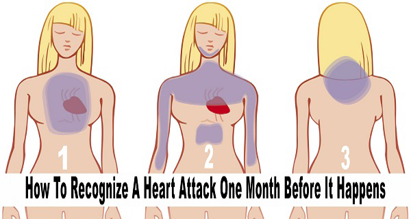 how recougnize heart attacks before months