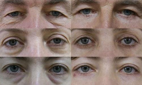 Средство от мешков под глазами и быстро снять отек глаз