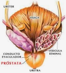 ajo para prostata