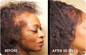 Natural Hair Restoration Products