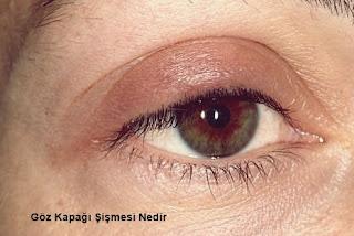 Göz Kapağı Şişmesi Nedir