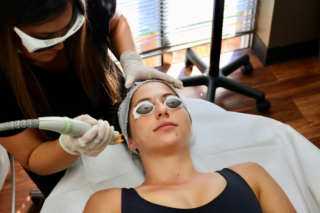 Laser Genesis laser treatment dark spots acne