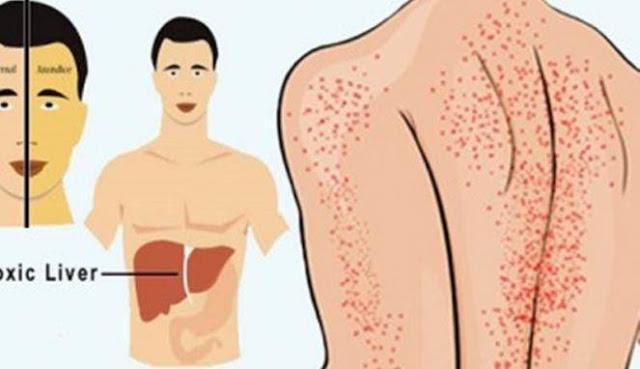 9 Tanda Ini Mengartikan Kalau Liver mu Bermasalah, No 3 Perlu Kamu Waspadai Karena Sering Terjadi!