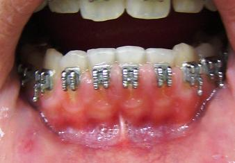 Ortodontia E Arte 2015