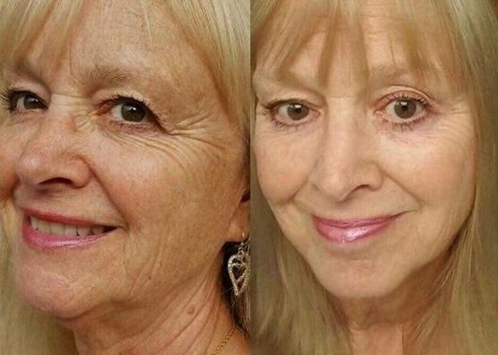 Chubby Cheeks Exercises To Improve The Middle And Lower Face Remedy Cheeks And Flaccid Jowls Using These 4 Yoga Facial Exercises