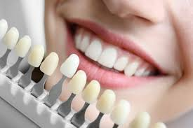 dental impants in Ahmedabad