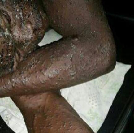 12 Persons Died Of Strange Disease In Ondo