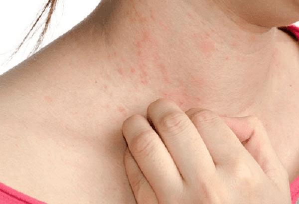 Bệnh chàm gây nguy hiểm như thế nào