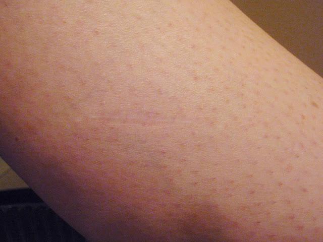 dematofibroma scar