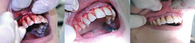 "<Imgsrc =""Cirugía-colgajo-periodontal-con-osteointegrador.jpg"" width = ""893"" height ""201"" border = ""0"" alt = ""Cirugía a colgajo periodontal"">"