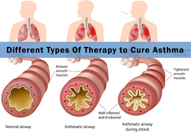 different types of therapy to cure asthma