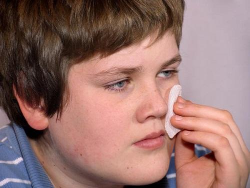 tratamiento de la rosacea papulopustular