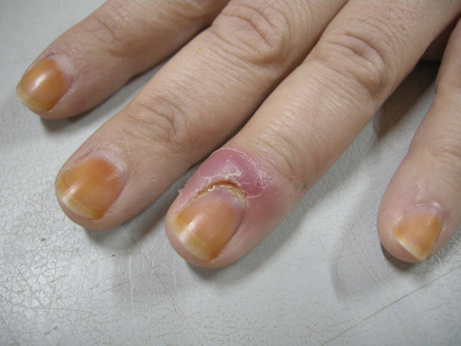 Cuticle Infection Paronychia