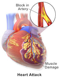 13 Ways to PREVENT HEART ATTACK Read it now and SAVE YOUR LIFE