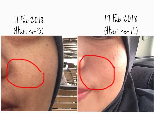 Kesan Penggunaan YOUTH Skin Care Selepas 10 Hari