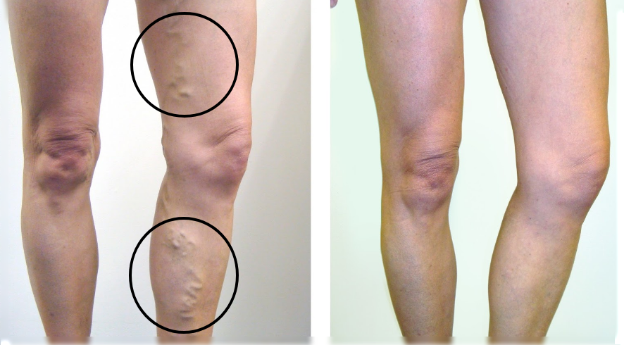 Recipe From Russia That Dissolve Thrombus: Salvation To All Who Suffer From Varicose veins!