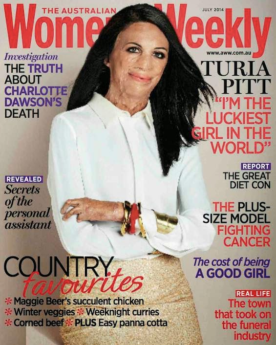 women's weekly turia pitt cover burns victim