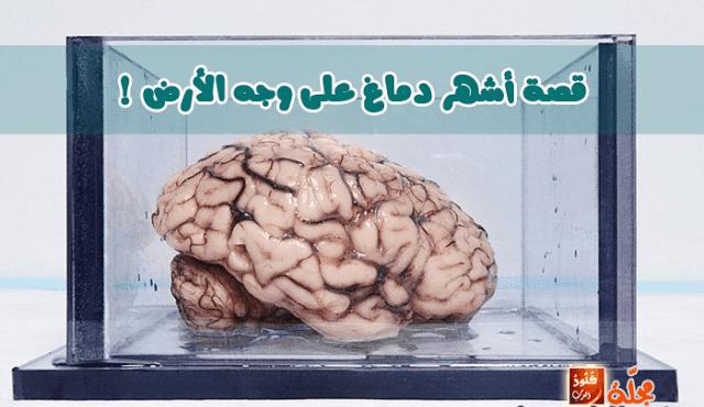 حقيقة أشهر دماغ على وجه الأرض !