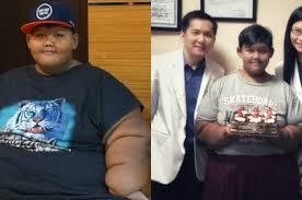 Dulu Beratnya 193 Kg, Kini Aria si Bocah Obesitas Sukses Hilangkan Lemak 70 Kg. Begini Hasilnya!
