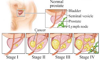 Prostate Cancer Prognosis
