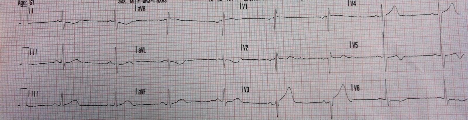 Erős szívdobogás? Íme, a szükséges vizsgálatok