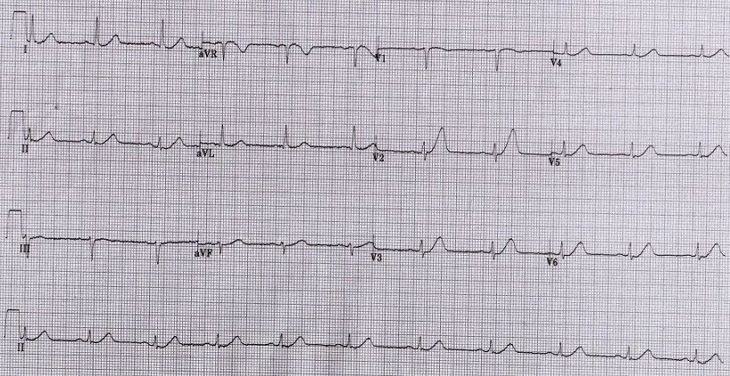 Dr  Smith's ECG Blog: A 37 year old woman with Chest Pain
