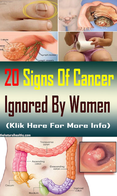 20 Signs Of Cancer Ignored By Women #Health #Medical