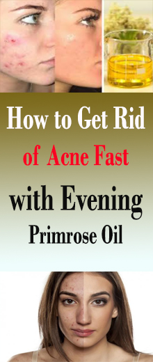 Step by step instructions to Get Rid of Acne Fast with Evening Primrose Oil #healthnaturalremedies