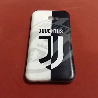 custom case juventus