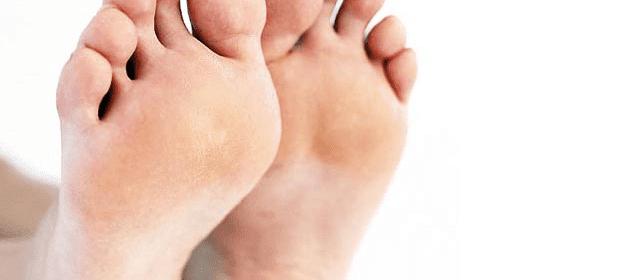 remedio contra los callos y hongos de los pies