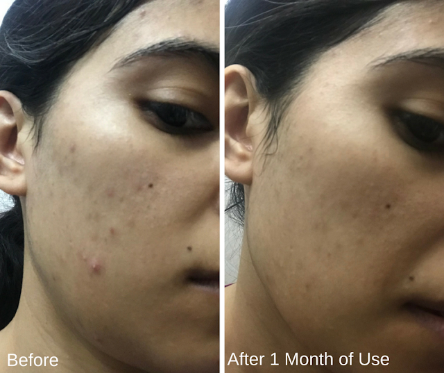 Klairs Product Review Before and After 2