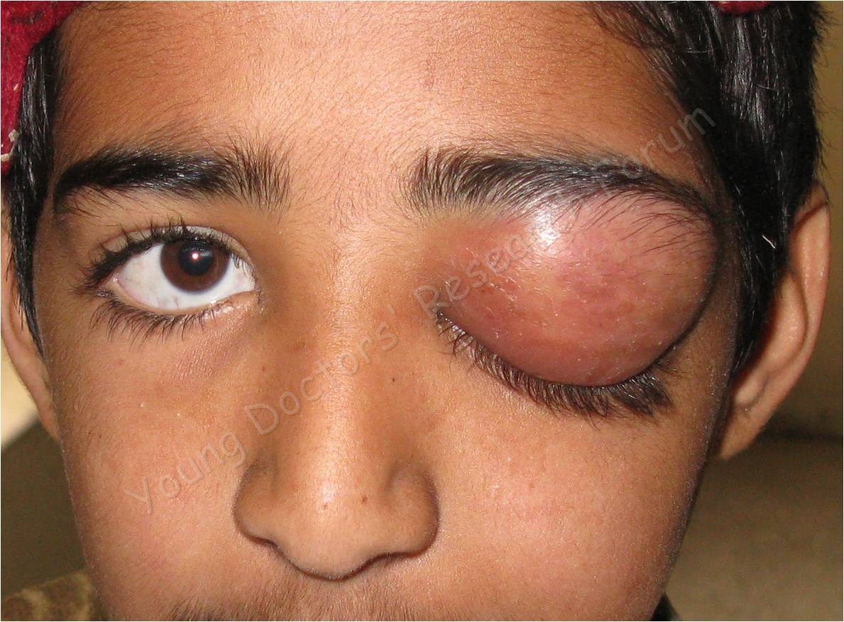 Common Eye Diseases Images Young Doctors Research Forum