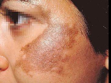 Apakah Penyebab Hyperpigmentation, Jeragat Tebal atau Jeragat Kronik?