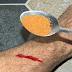 Δείτε ποιο μπαχαρικό βάζει στο χέρι του για να σταματήσει την αιμορραγία !