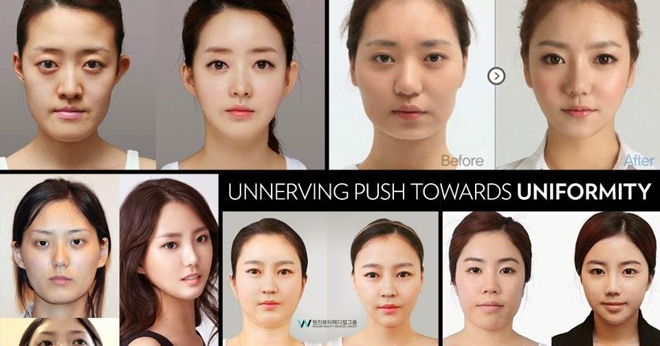 Az ázsiaiak látása rosszabb